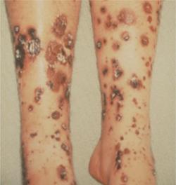 膠原 病 の 検査
